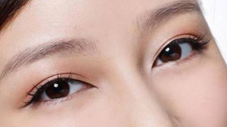 什么是假性双眼皮? 治疗方法有哪些?