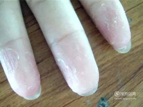 小孩手指蜕皮怎么回事